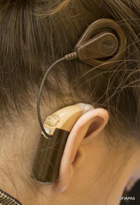 Imagen de una joven con un implante coclear (c) FIAPAS